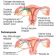 perimenopause period