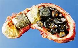 Gallstones inside the gallbladder